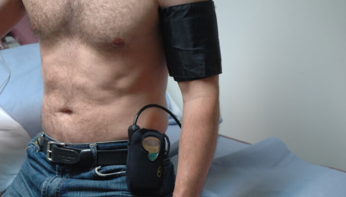 holter pritiska dimedik ordinacija